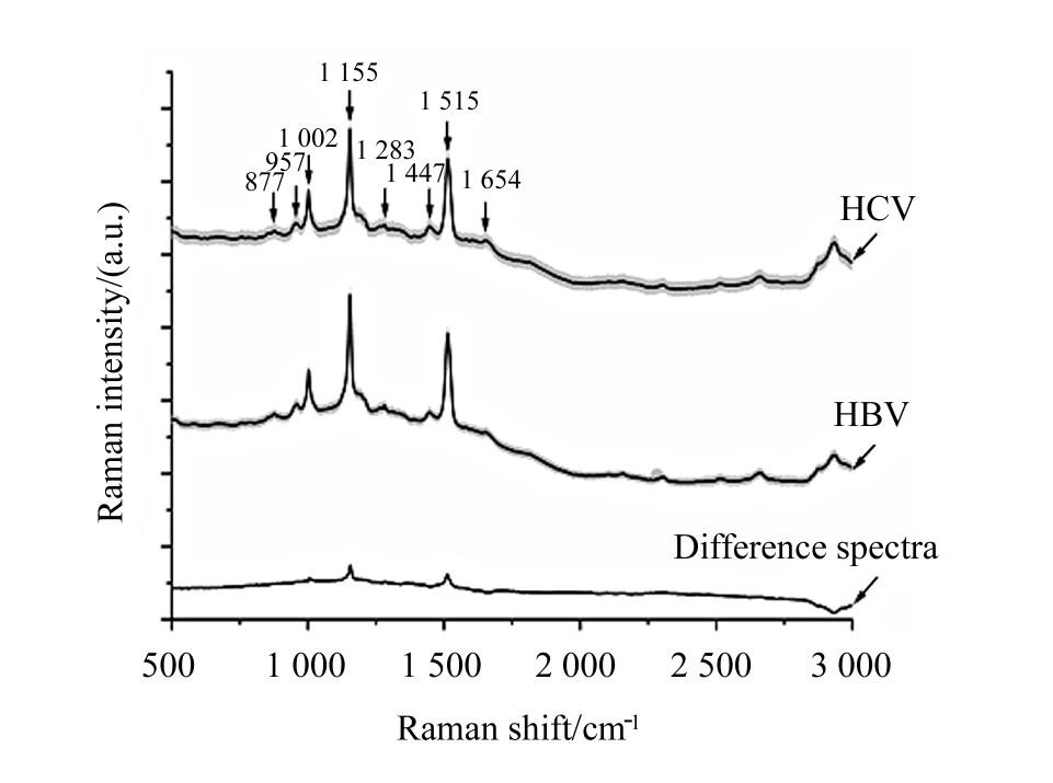 图1 感染HBV患者和感染HCV患者的血清样品之间归一化平均光谱的比较